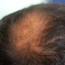 Header image for article about natural treatments for hair loss in men and women